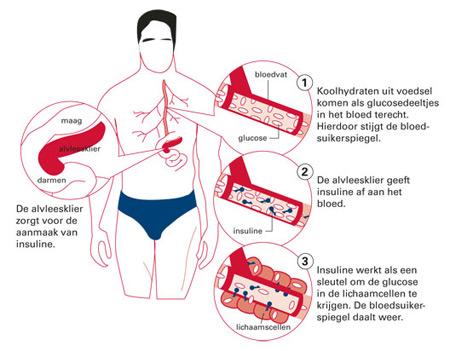 uitleg diabetes